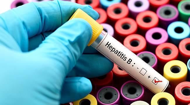 Hepatit Hastalığı, Yemek Borusu Varisi İçin Risk Oluşturuyor
